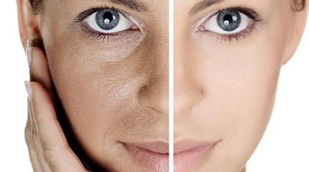 """""""Todas las enfermedades que tenemos en la piel o la gran mayoría tiene mucho que ver como esta por dentro nuestro cuerpo"""""""
